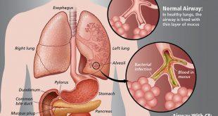 فیبروز کیستیک چیست