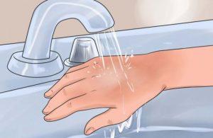 درمان سوختگی با آب