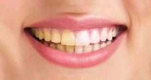 علت زردی دندان ها