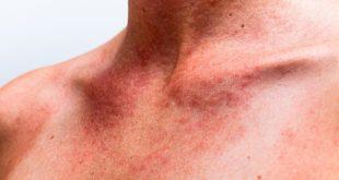 اثرات دیررس آفتاب برروی پوست