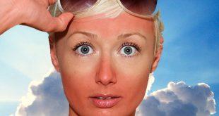 دفاع پوست در برابر نور خورشید