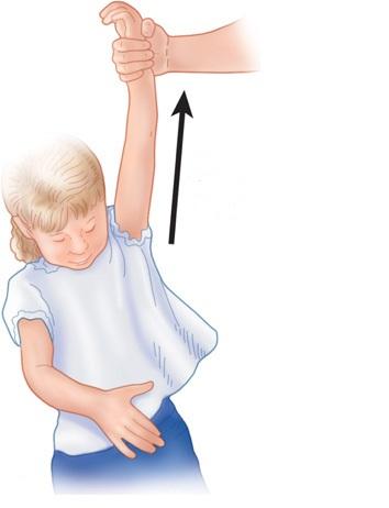 کشیدگی آرنج دست کودکان