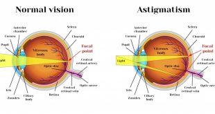 آستیگماتیسم چشم چیست و چه علائم و درمانی دارد