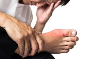 بیماری نقرس چیست؟ درمان آن را میدانید؟
