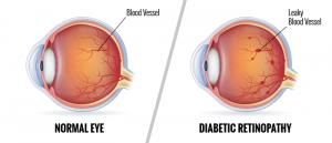 درمان مگس پران با لیزر