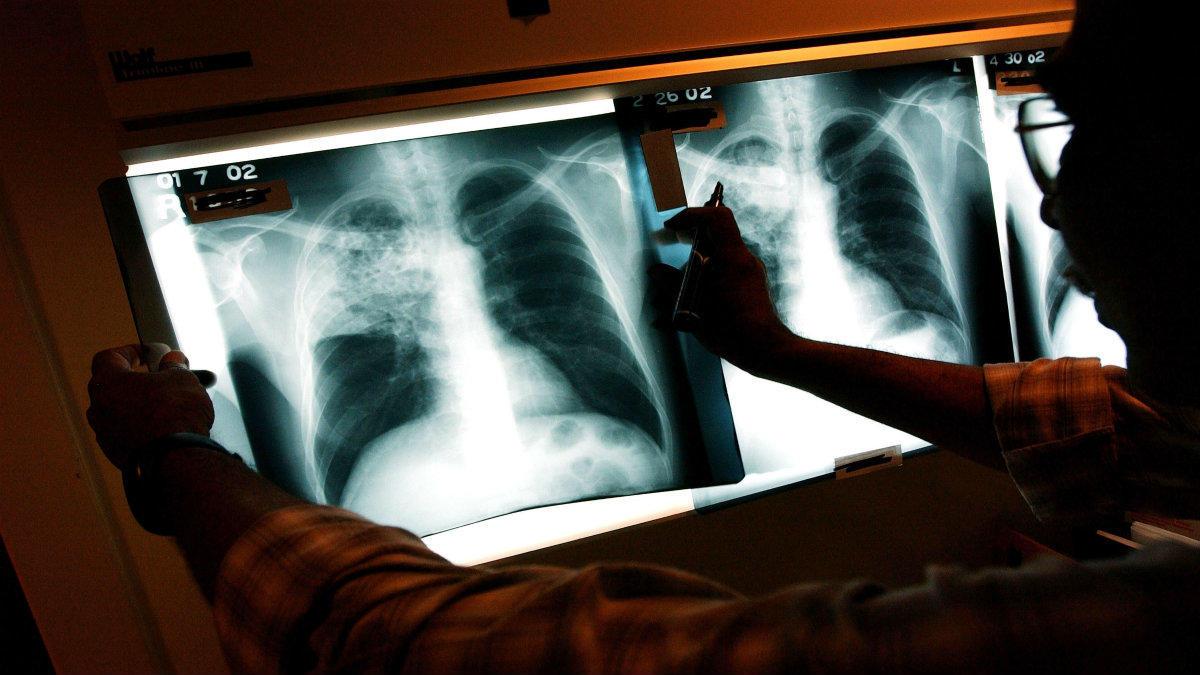 سل چیست؟ راه های تشخیص و درمان این بیماری را میدانید؟