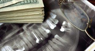 هزینه ها و تعرفه دندانپزشکی و نکاتی که شما باید بدانید