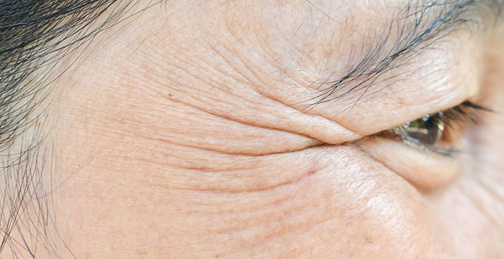 under eye skin care