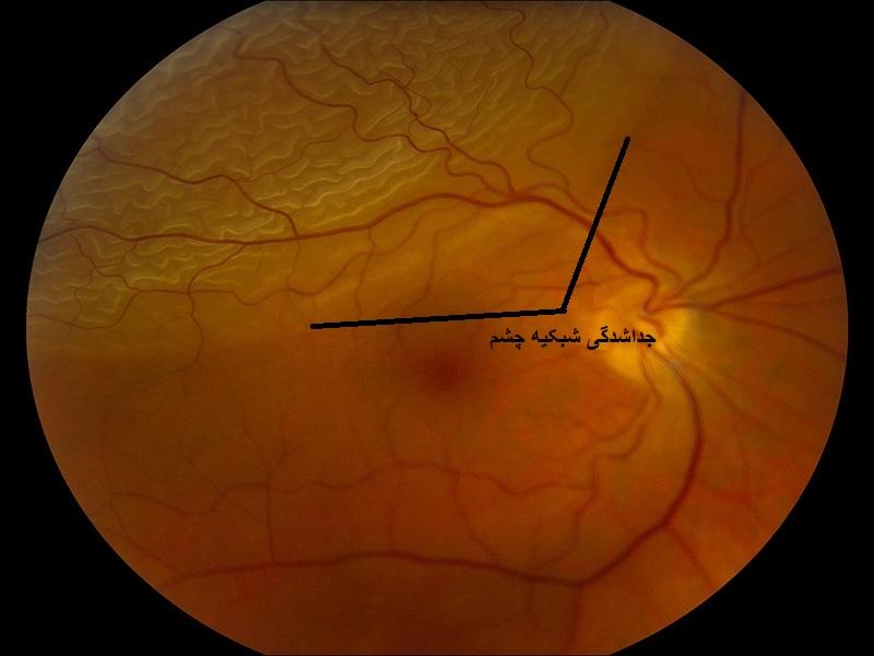 جداشدگی شبکیه چشم