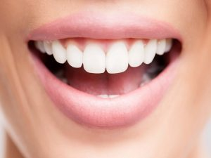 لمینت دندان ، مزایا و معایب