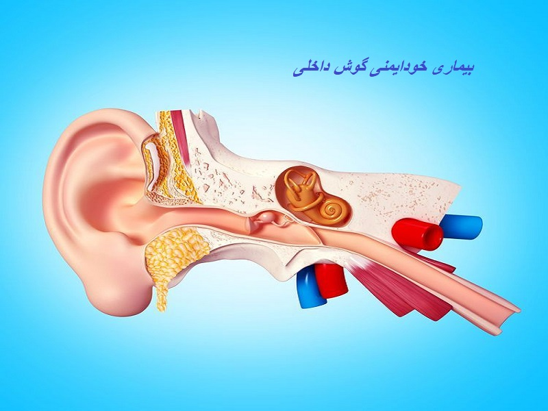 بیماری خودایمنی گوش داخلی