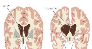بیماری هانتینگتون و حفره مغزی